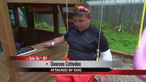 Dog attacks 10-year-old boy in Plymouth