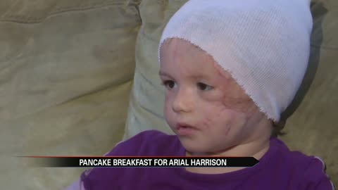 Breakfast Fundraiser raises $32,000 for Arial Harrison to get prosthetic ears