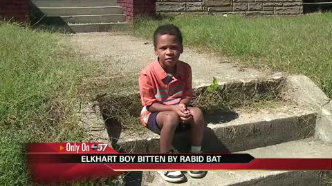 Rabid bat bites 7-year-old Elkhart boy