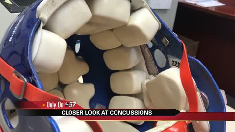 Serious repercussions: A closer look at concussions and CTE