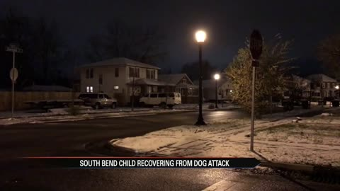 SBPD: South Bend boy attacked by pit bull Wednesday night
