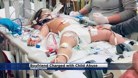Sheboygan man charged with child abuse after toddler severely injured
